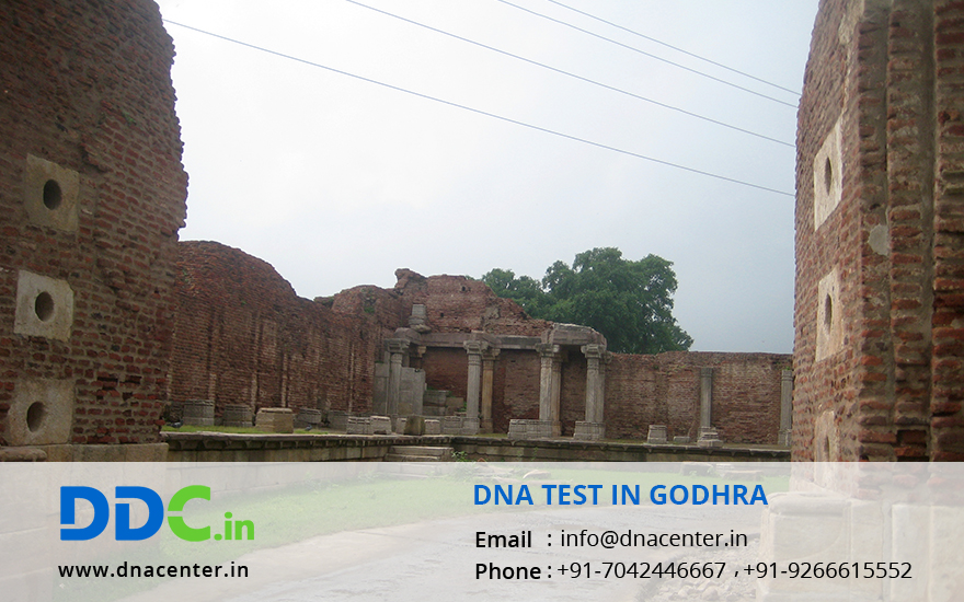 DNA Test in Godhra