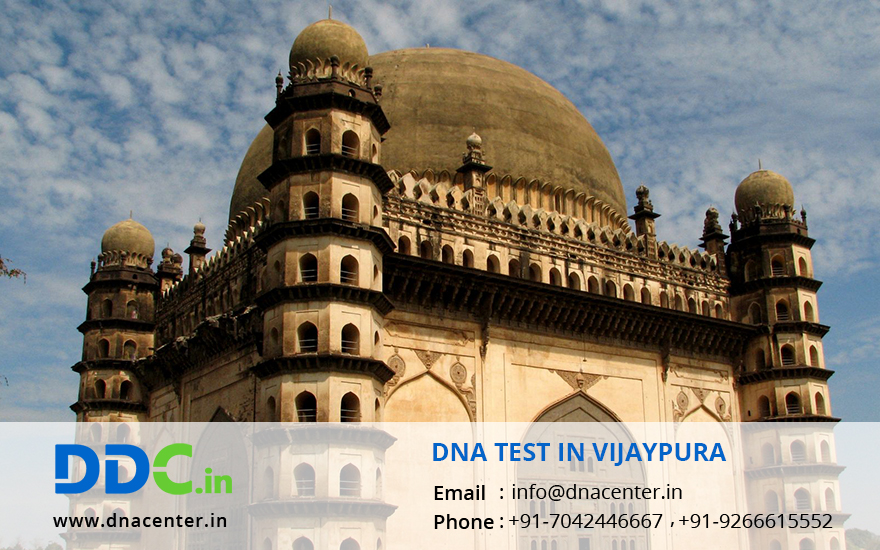 DNA Test in Vijaypura